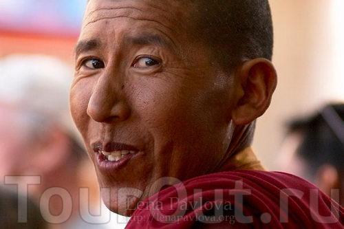 Лунка после удаления зуба: фото, сколько заживает?