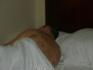 вид спины после китайского баночного массажа